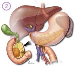 liver cancer liver enzyme levels