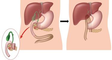 inflamed gallbladder diet cleanse