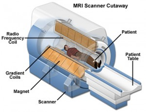 MRI Scans: All You Need To Know - Medical News Today