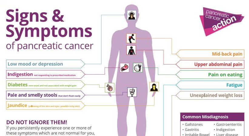 Pancreatic Cancer Action Symptoms Poster