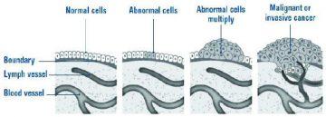 Cancerous cells diagram