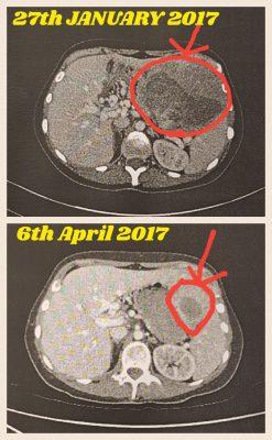Danielle tumour shrinking