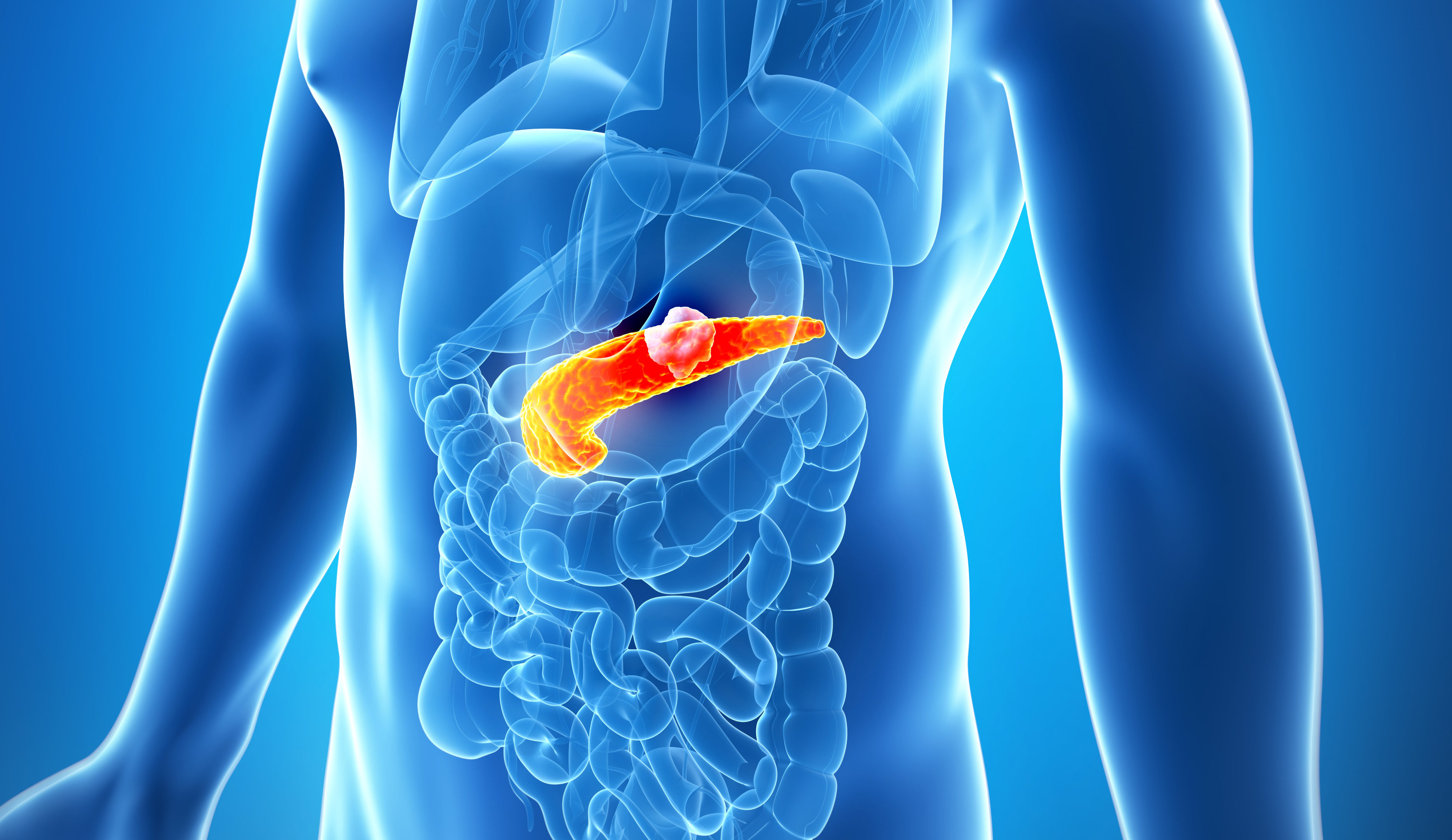 3d rendered illustration of the male pancreas - cancer